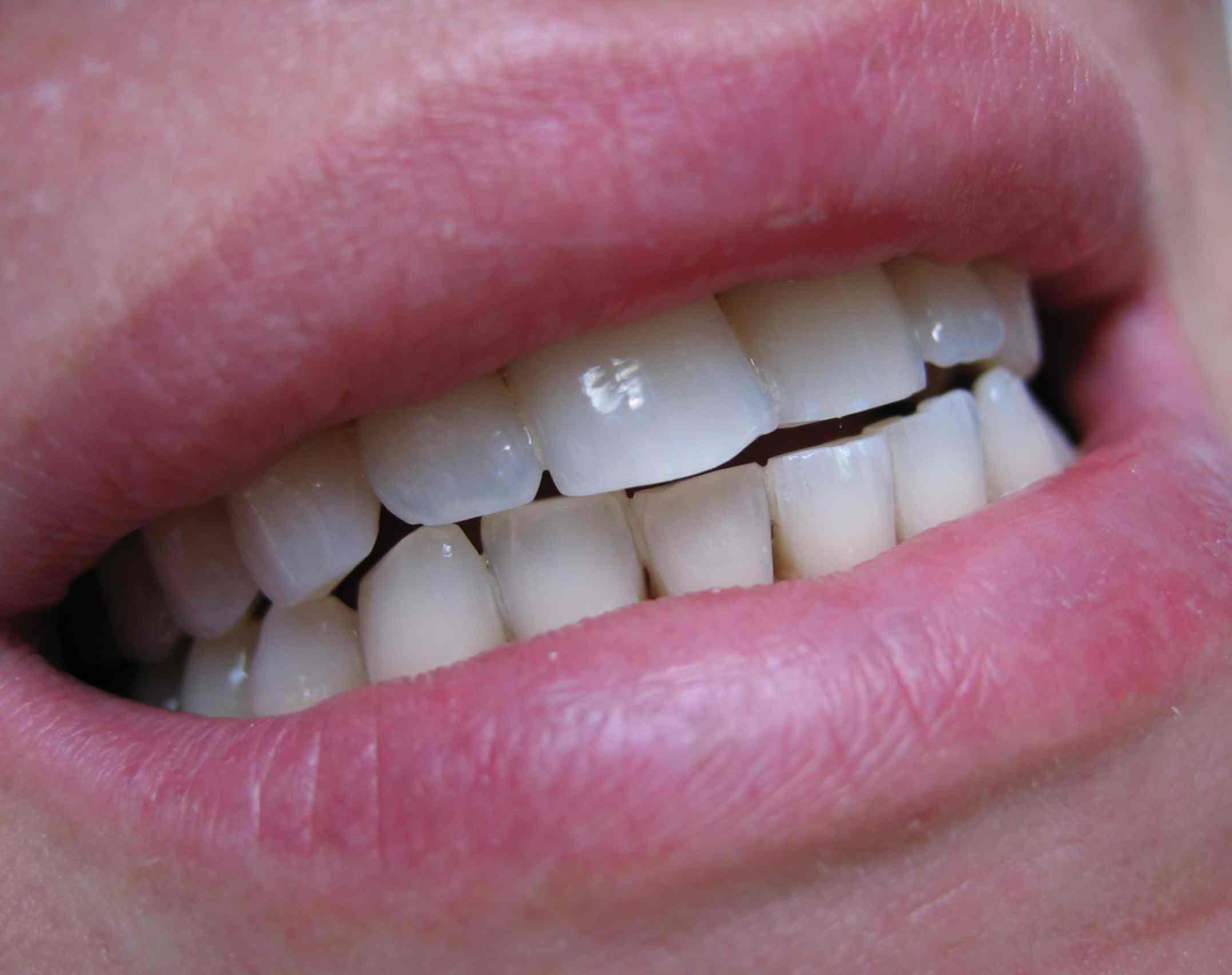 indications dent blanche blanchiment dentaire blanchiement dentaire whitening technique mode. Black Bedroom Furniture Sets. Home Design Ideas